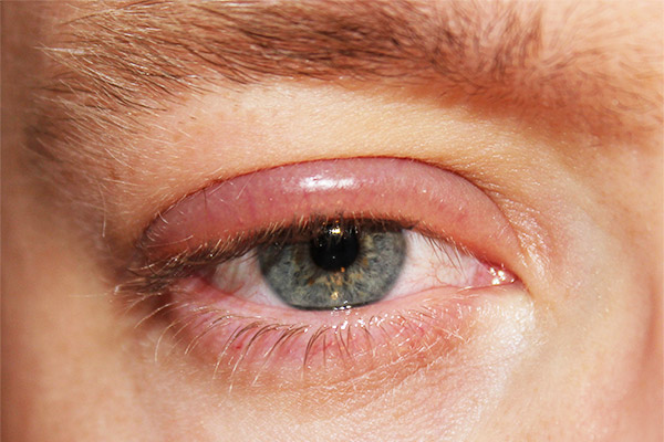 Глаза опухли