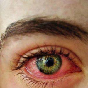 Аллергия - красный глаз