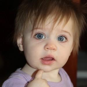 Разные зрачки у ребенка