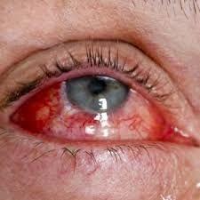 Травмирование глаза