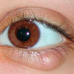 Ячмень под глазом