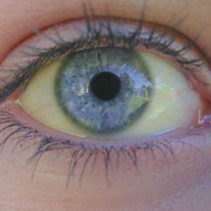 Желтый белок глаза