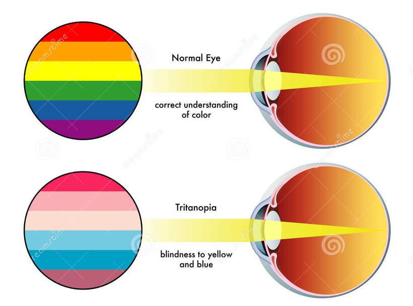 Как видит глаз?