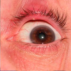 Стафилококк на глазу