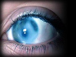 Застойная глаукома