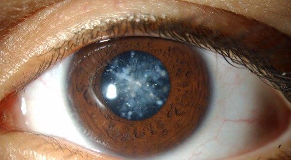 Глаз с катарактой