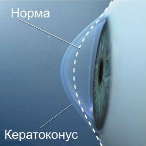 Кератоконус глаза