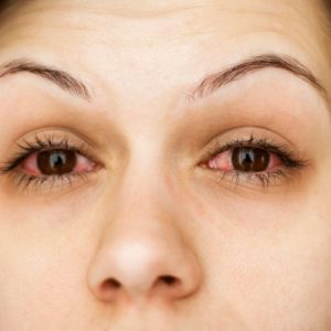 У девушки красные глаза