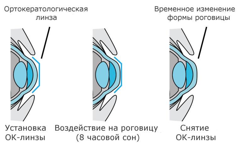 Схема действия ок линзы