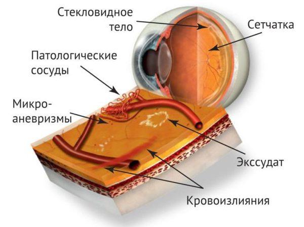 Рисунок глаза внутри при ангиопатии