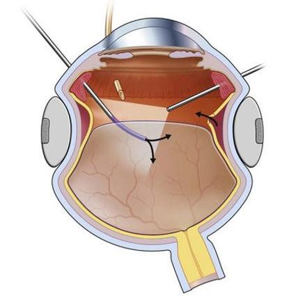 Балонирование сетчатки глаза