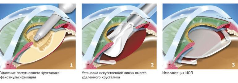 Этапы операции на глаза