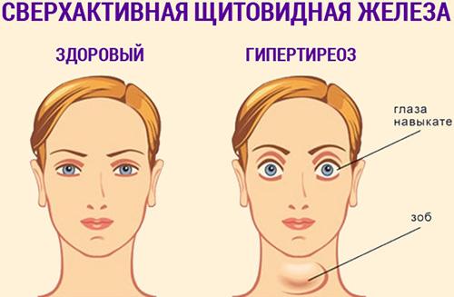 Гипертиреоз симптомы рисунок