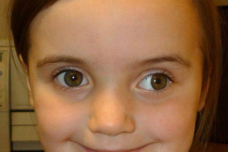 У девочки глаза в разные стороны