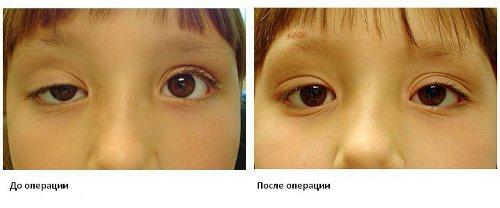 Ребенок до и поле операции по устранению косоглазия