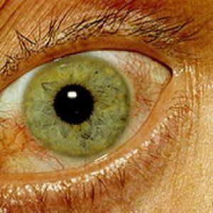 Кератит болезнь