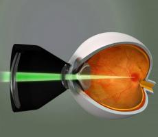 Лазерная операция на глаз