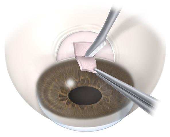Трабекулэктомия при глаукоме