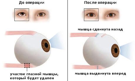 Схема при операции по устранению косоглазия