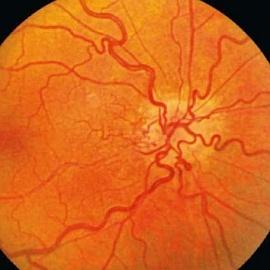 Сосуды сетчатки глаза