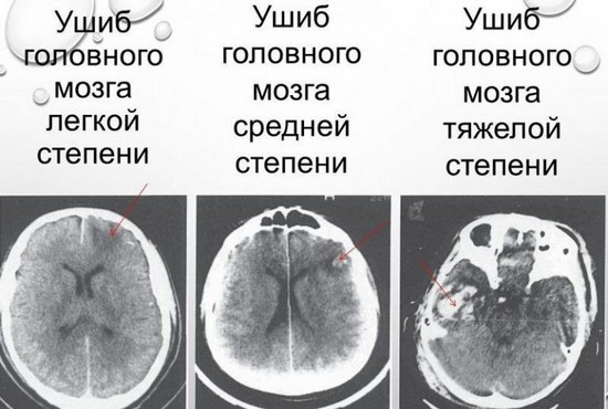 Степени ушиба головного мозга