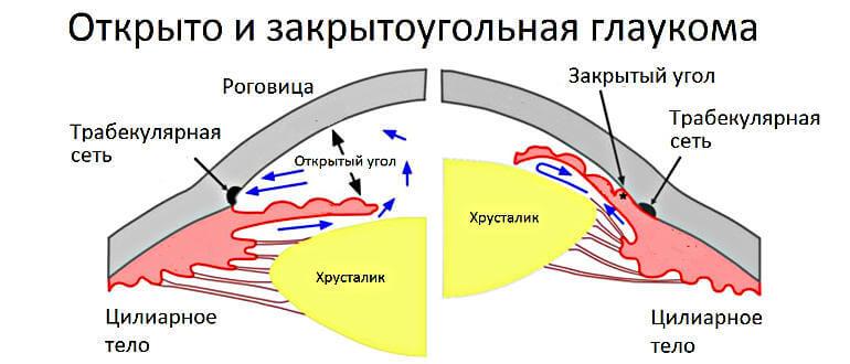 Открытоугольная и закрытоугольная глаукома рисунок