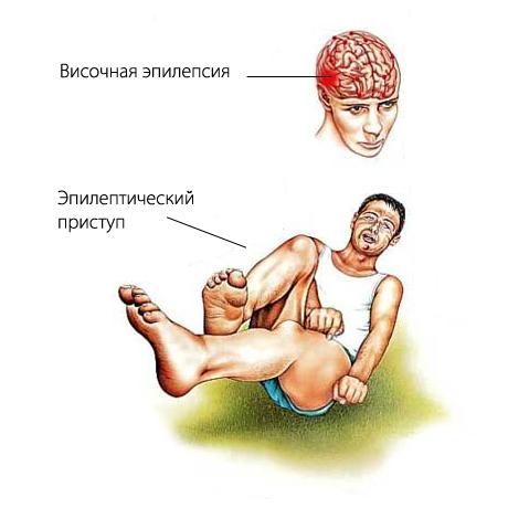 Изображение приступа эпилепсии