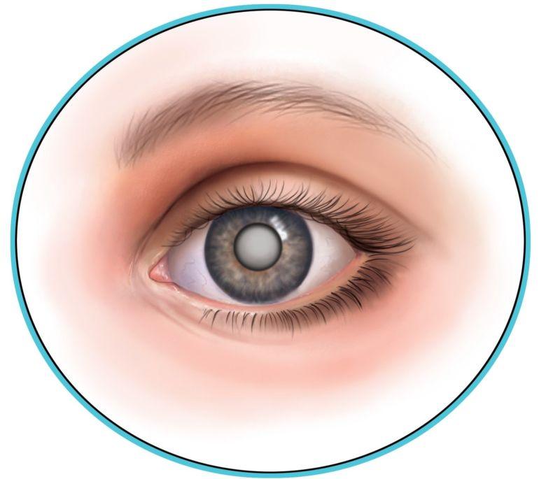 Глаз при катаракте