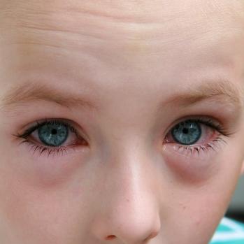 Отечность глаз при аллергии