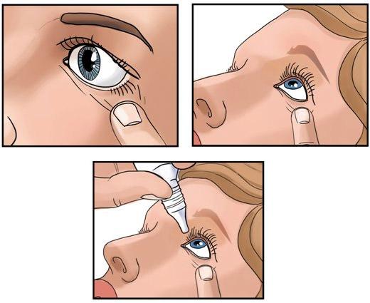 Схема как закапывать глаз