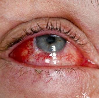 Глаз с конъюктивитом