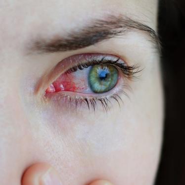 Конъюнктивит глаза