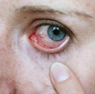 Красный воспаленный глаз