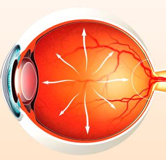 Офтальмотонус глаз
