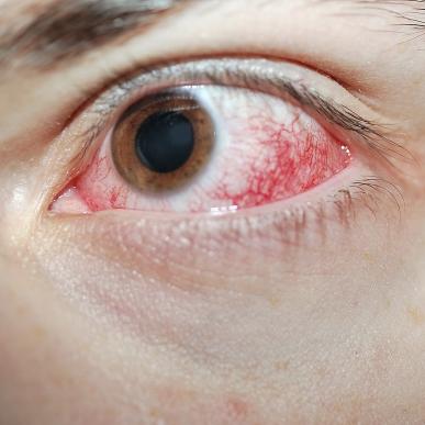 Красные сосуды глаза