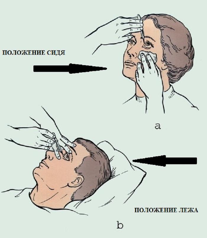 Положение человека при закапывании глаз