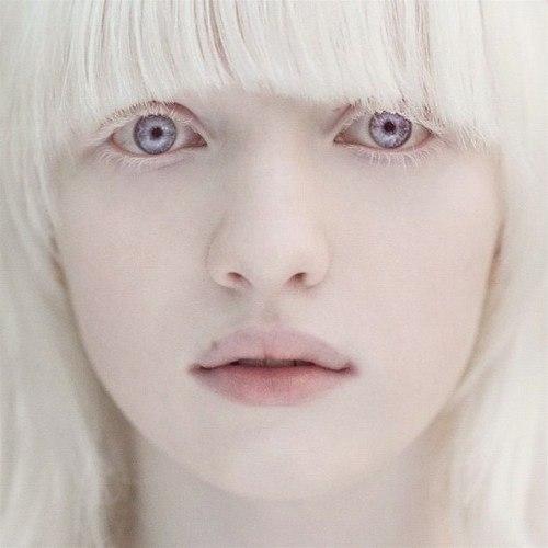 Девушка альбинос