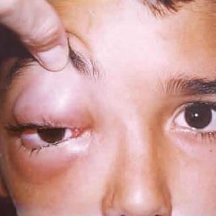 Флегмона глаза