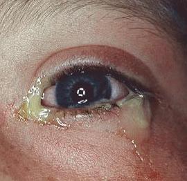 Глаз гноится