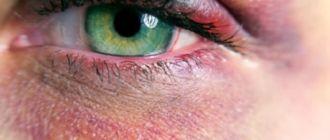 Синяк под глазом