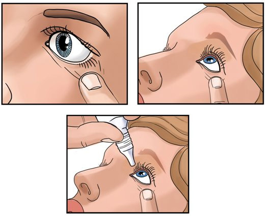 Закапывает глаза правильно
