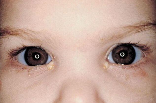 Корочки на глазках малыша