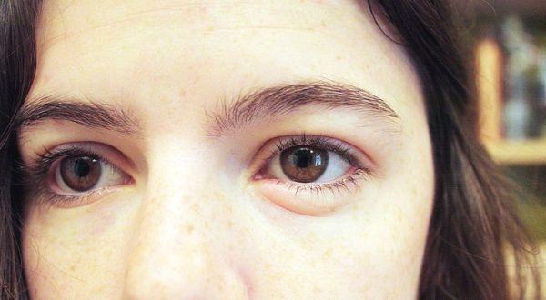 Отек глаза у девушки