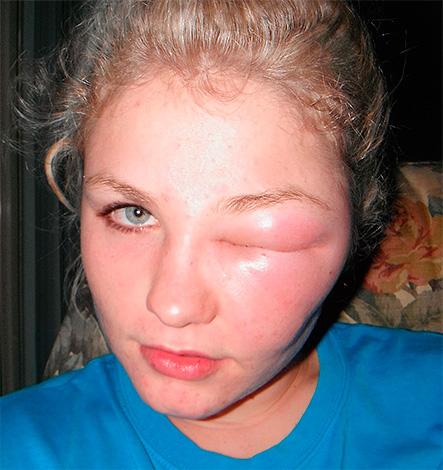Отек глаза от укуса насекомого
