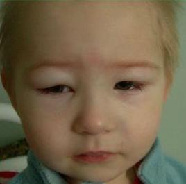 Почечный отек лица и глаз у ребенка