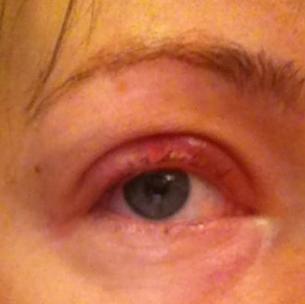 Глаз после операции