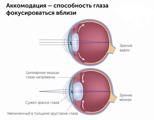 Изображение спазма аккомодации глаза