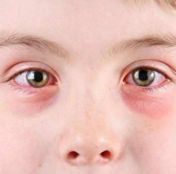 Вирусный кератит у ребенка
