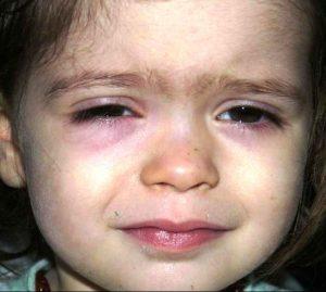 Девочка с красными глазами