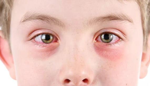 У ребенка красные круги под глазами